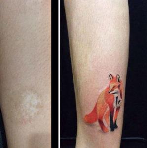 Jaki wybrać tatuaż na zasłonięcie blizny - przykłady